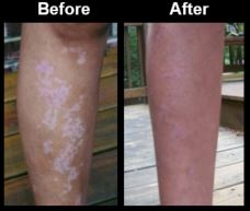 Leg Pigment - Before and After